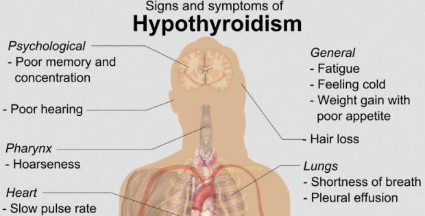 herbal medicine for thyroid disorder